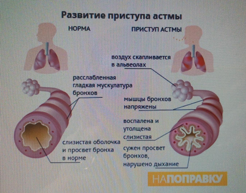 Как купировать приступ астмы в домашних условиях 148